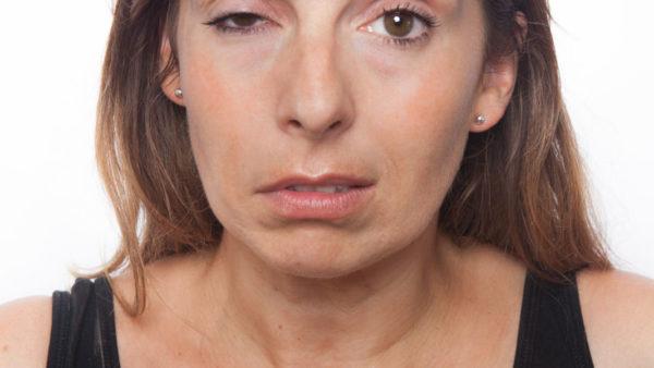 n. facialis parese (aangezichts-verlamming)