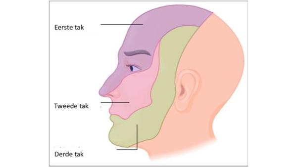 Behandeling mét resultaat bij patient met aspecifieke aangezichtspijn